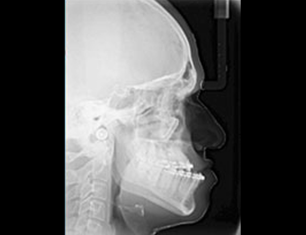 Preop Xray Lateral Ceph Showing Narrowed Upper Airway