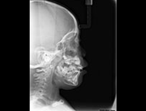 Post Op xray Lateral Ceph Showing Corrected Upper Airway