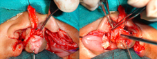 """Periosteoplasty is done in patients who have associated cleft alveolus and/or cleft palate. It is done to receive the bone graft later on and to minimize the formation of """"Y"""" junction fistula"""