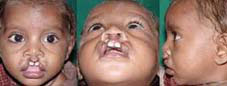 Type I b Symmetrical cleft involving vermillion and white roll of lip and also involving nostrils