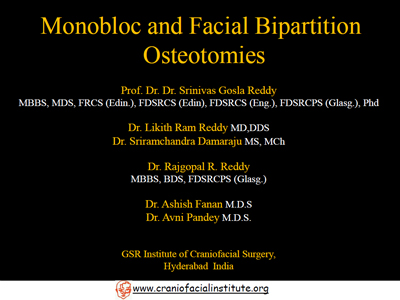 Monobloc and Facial Bipartition osteotomies