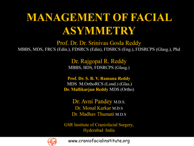 Management-of-facial-assymetry