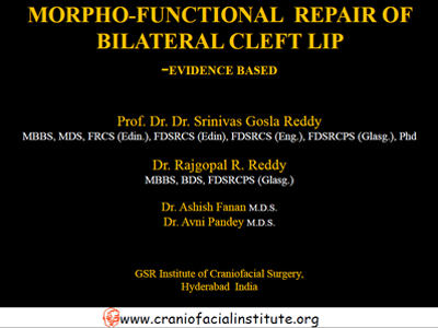 Morpho-functional-repair-of-bilateral-cleft-lip