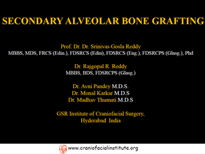 Secondary-alveolar-bone-grafting