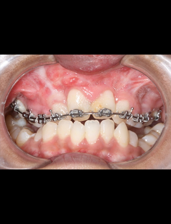 Ongoing Ortho Treatment